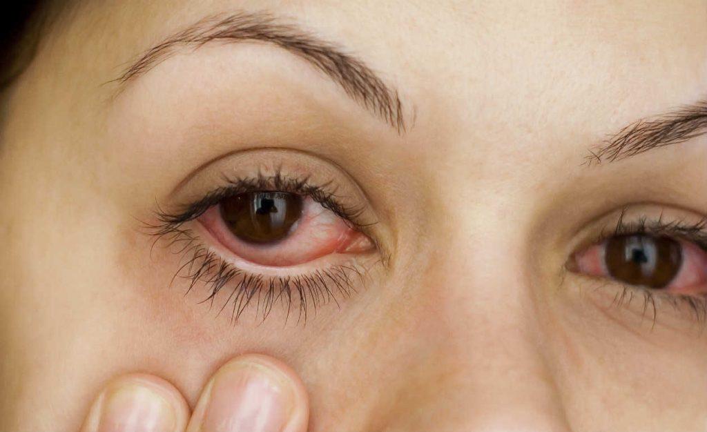 Irritação nos olhos na piscina